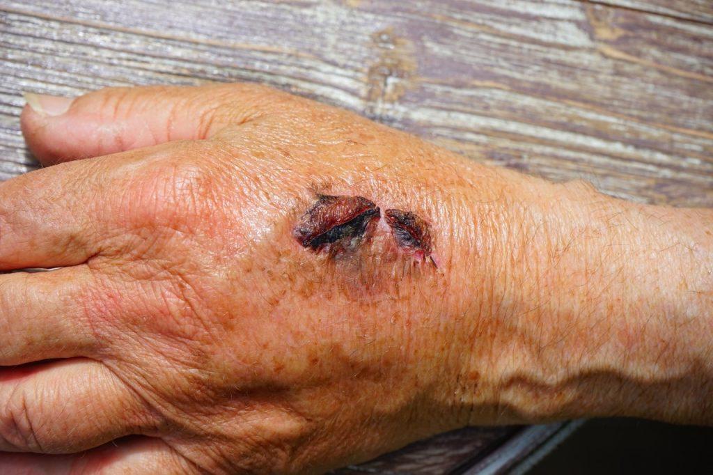 drug-use-skin-lesions-scabs-rash-meth-mites-drug-rehab-Bryan-Texas